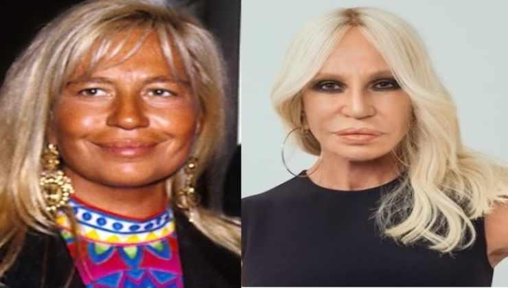 Donatella Versace chirurgia estetica
