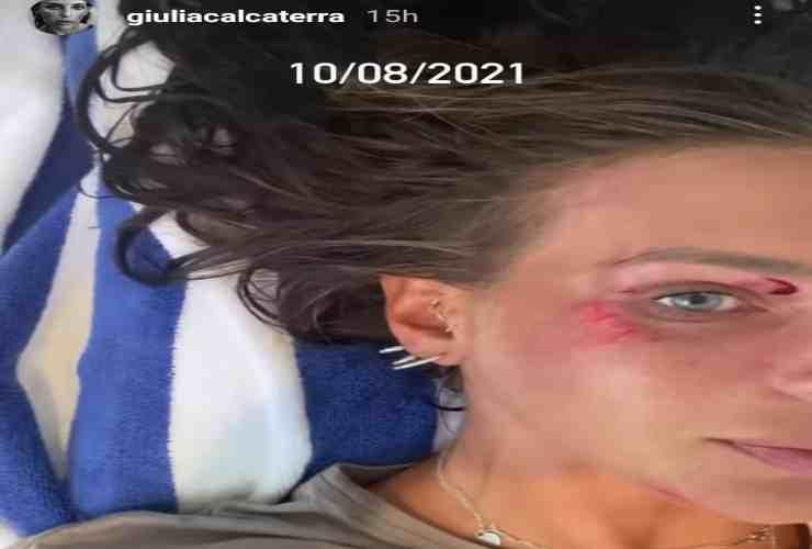 Giulia Calcaterra da striscia all'incidente Political24