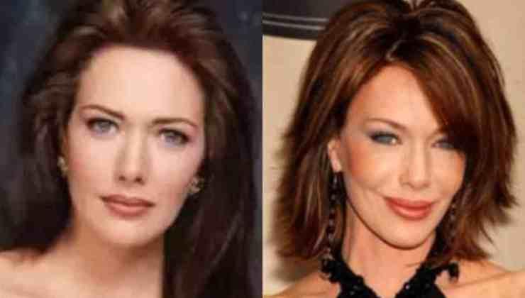 Taylor, com'è diventata l'attrice di Beautiful dopo la chirurgia - Political24